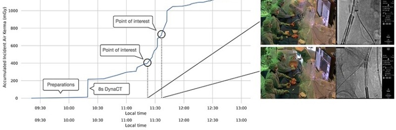Video och data kan minska strålningsrisker vid operation